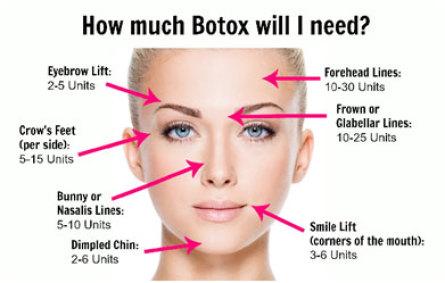 Botox needed diagram